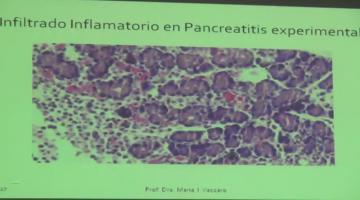 Fisiopato 2017 17 de Abril Fisiopatología Pancreática