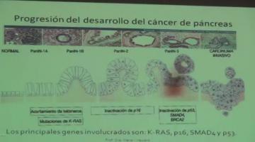 Fisiopato 2017 18 de Abril Fisiopatología Pancreática II