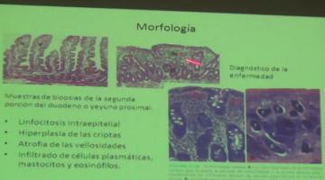 Fisiopato 2017, 24 de Abril. Fisiopatología Intestinal. Enfermedad Celíaca y enfermedades inflamatorias intestinales.