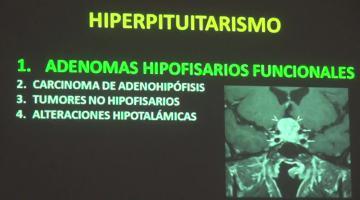 Fisiopato 2017, 12 de Junio. Hiperfunción e Hipofunción de las Glandulas Endócrinas.